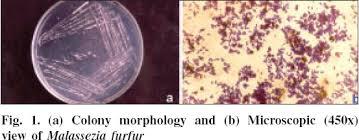 Malassezia furfur kontra xylitol